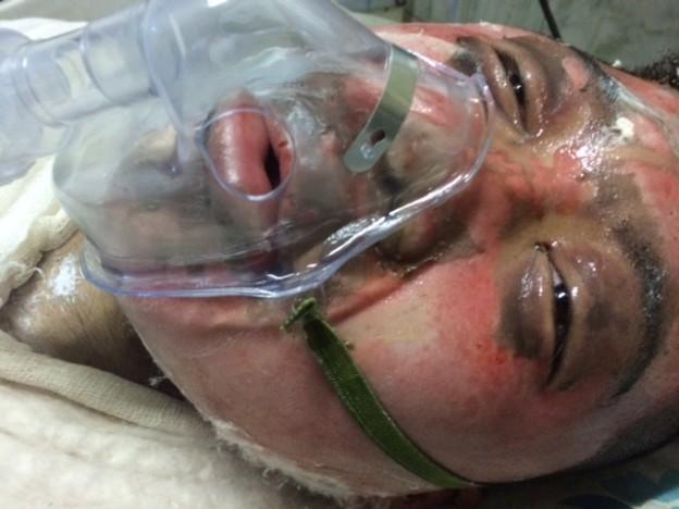 Dorjee Tsering after burning himself.